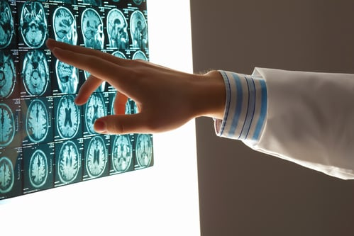 Here are 7 things you should know, so you can protect yourself and your loved ones from the damages of CTE, Chronic Traumatic Encephalopathy.